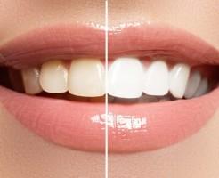 歯を白くするホワイトニング歯磨き粉